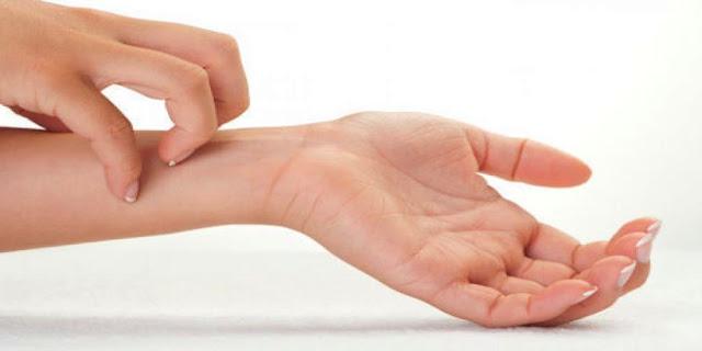 Tips Mengatasi Penyakit Gatal-Gatal
