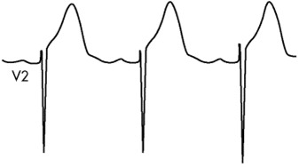 Float Nurse: ACLS review: Acute Coronary Syndromes Part 4