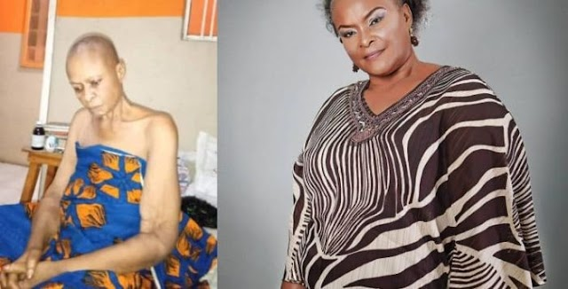 PLEASE HELP!!!Nollywood Actress Ify Onwuemene Down With Cancer, Colleague Appeals For Help🙆‍