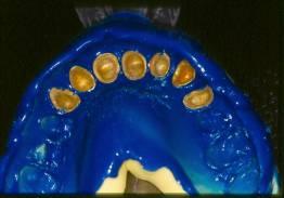 Lesiones en la mucosa oral.