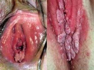 Cara Menghilangkan Bintik kasar seperti kutil di vagina
