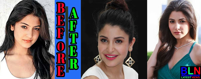 ANUSHKA SHARMA Bollywood Actresses Before and After Plastic Surgery