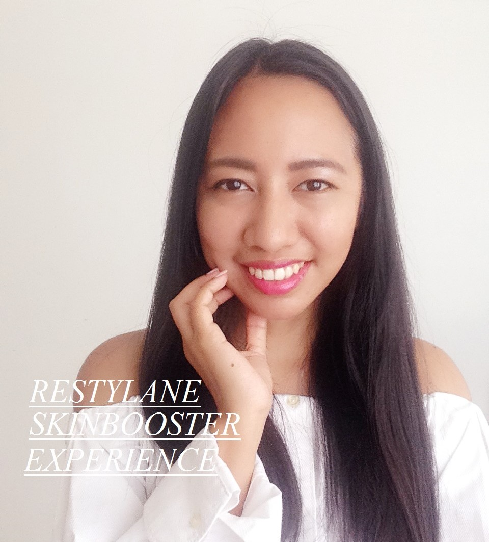 restylane skinboosters review