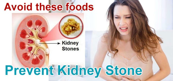 How to get rid of kidney stones in a day?