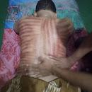 Spesialis pijat urat otot tubuh manusia ngampon beran Blora