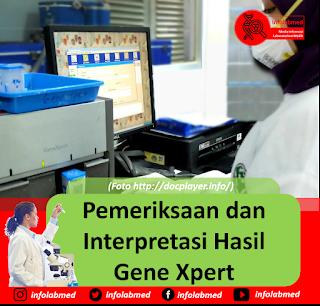 Pemeriksaan dan Interpretasi Hasil Gene Xpert