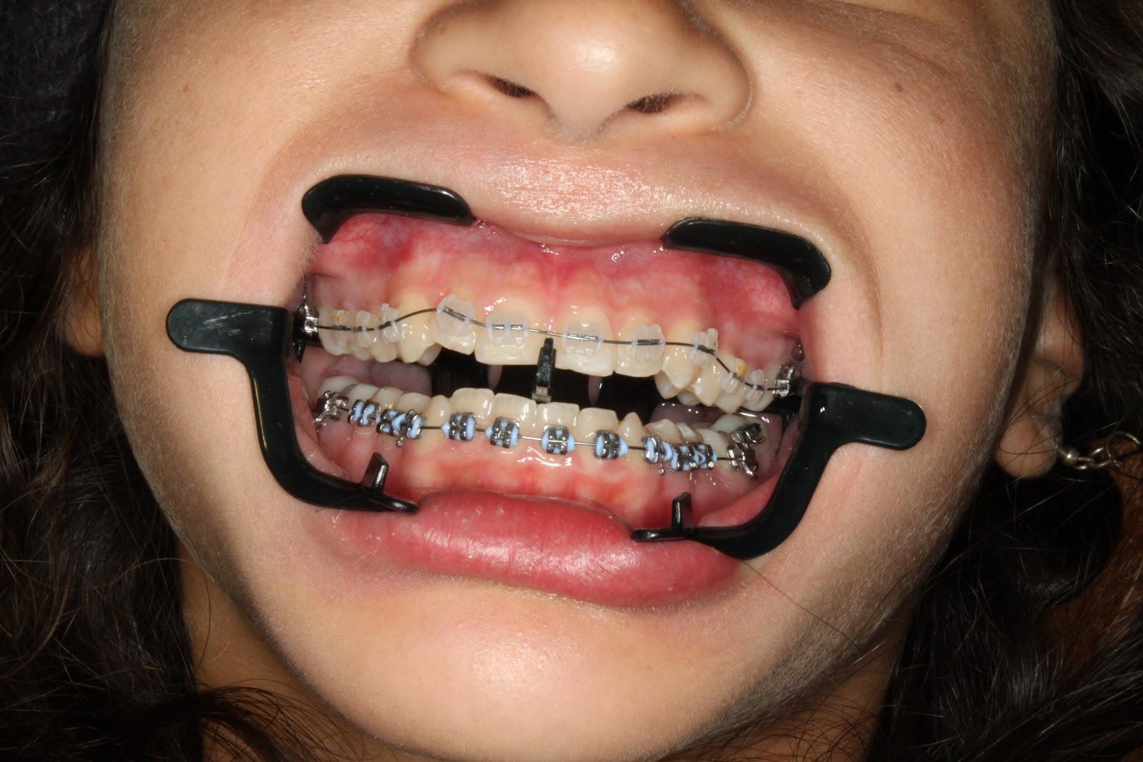 Bales Orthodontics April 2011
