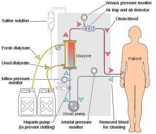 Cuci Darah Pada Gagal Ginjal