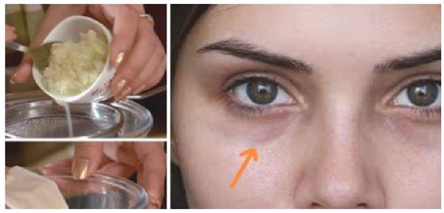 8 Cara Mudah untuk Menghilakan Lingkar Hitam di Mata Secara Permanen No 7 Paling Gampang di Lakukan !!