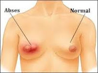 Contoh Gambar Penyakit Kanker Payudara