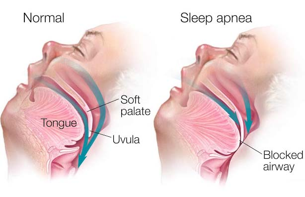 More than 18M United States residents are influenced by OSA, a state, which becomes a reason for them to halt breathing for 30 or more times every hour during their sleep at nighttime.  Already mechanical devices are there for the curing of obstructive sleep apnea; however, lots of sufferers are not able to endure them soundly. In this scenario, the accessibility to latest machines is just like a sigh of relief for them.