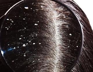 Bahan Alami Bisa Bantu Atasi Ketombe Bandel di Kulit Kepala