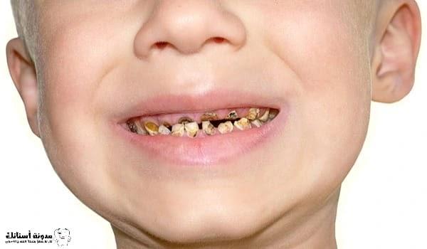 كيفية منع وعلاج تسوس أسنان الأطفال .