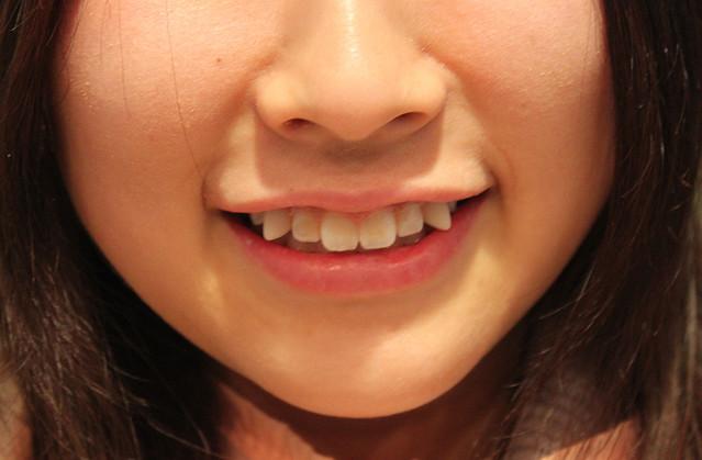 Dianggap Aneh Model Gigi Seperti Ini, Dijepang Malah Jadi Trend di Kalangan Remaja