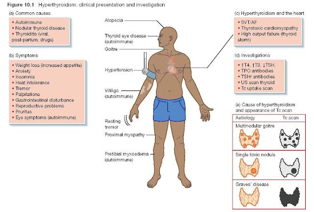 Hyperthyroidism Clinical Presentation and Investigation