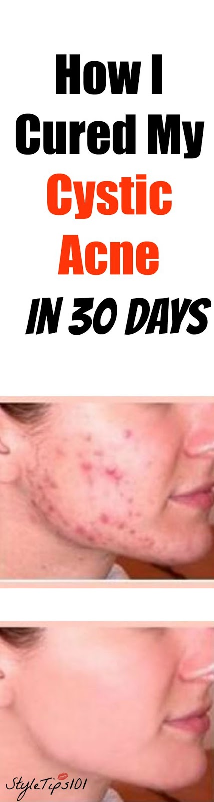 How I Cured My Cystic Acne In 30 Days