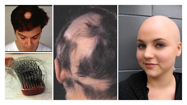 Alopecia: causas, síntomas, tipos y prevención