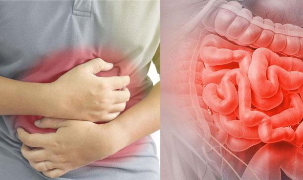 أدوية لعلاج التهاب المعدة والقولون