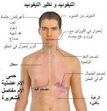 Typhoid Fever حمى التيفوئيد وطرق العلاج
