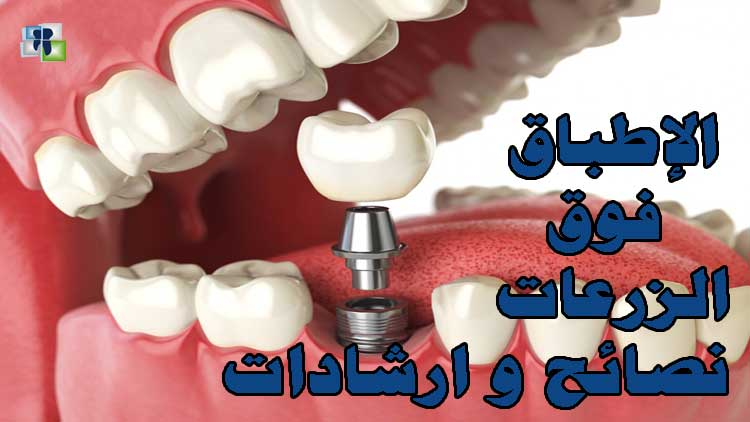 فوائد في الإطباق فوق الزرعات - زرع الأسنان
