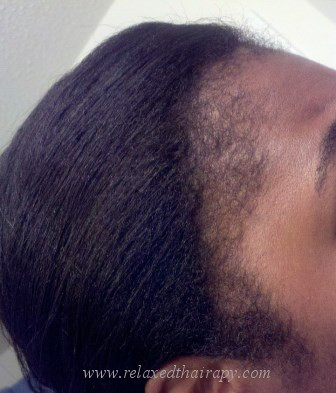 How Scalp Massaging With Oil Repaired My Thinning Edges A Day By Jay