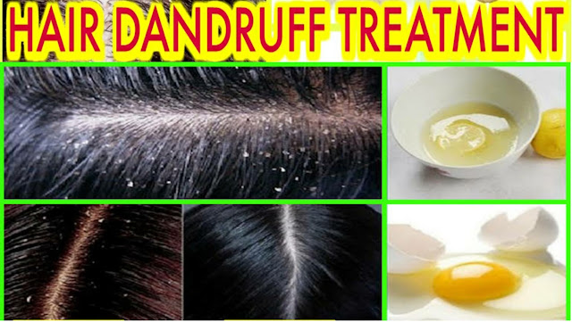 3 Home Remedies to Get Rid of Dandruff Naturally   how to get rid of dandruff fast