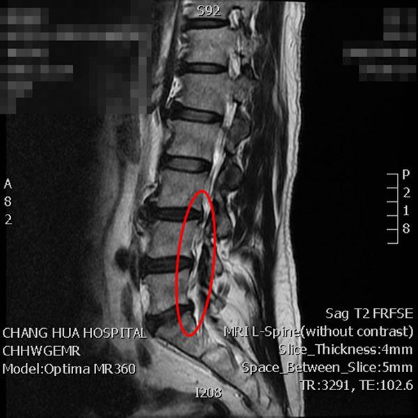 彰化醫院微創腰椎疼痛神經阻斷術 30分鐘擺脫病灶