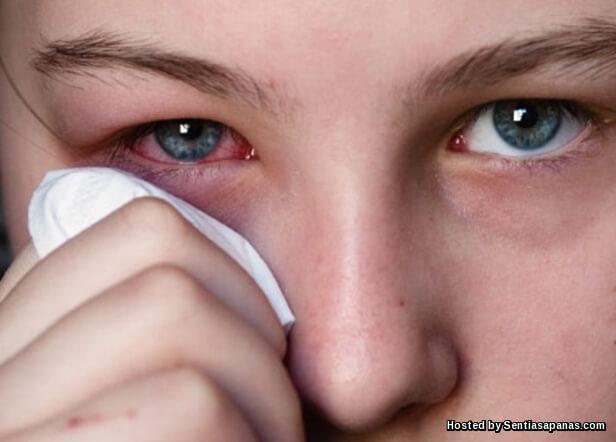 Punca Mata Pedih Dan Gatal