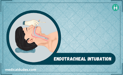 Endotracheal Intubation - medicaldudes
