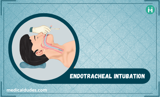 Endotracheal Intubation क्या है: Purpose, Procedure & Risks
