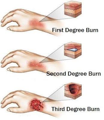 cara merawat luka bakar dengan mebo mederma