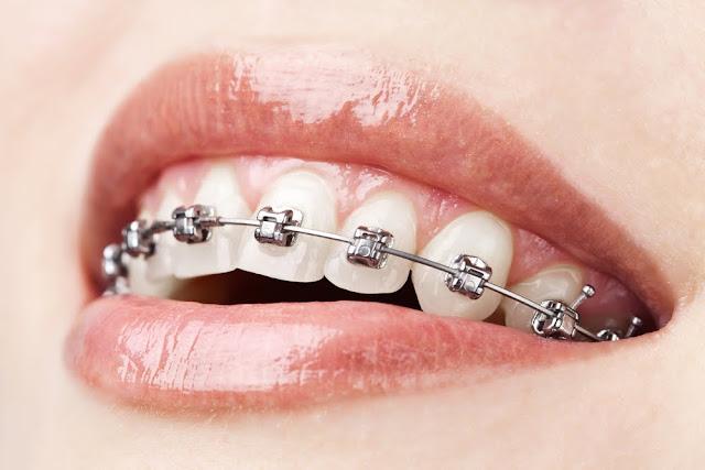 Perkiraan Biaya Pasang Behel Bagi Kamu yang Ingin Pasang Behel Gigi