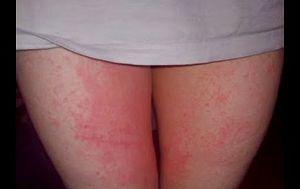 Jenis Infeksi Jamur Yang Harus Anda Ketahui - tinea kruris