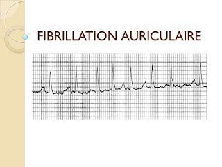 FIBRILLATION AURICULAIRE.pdf