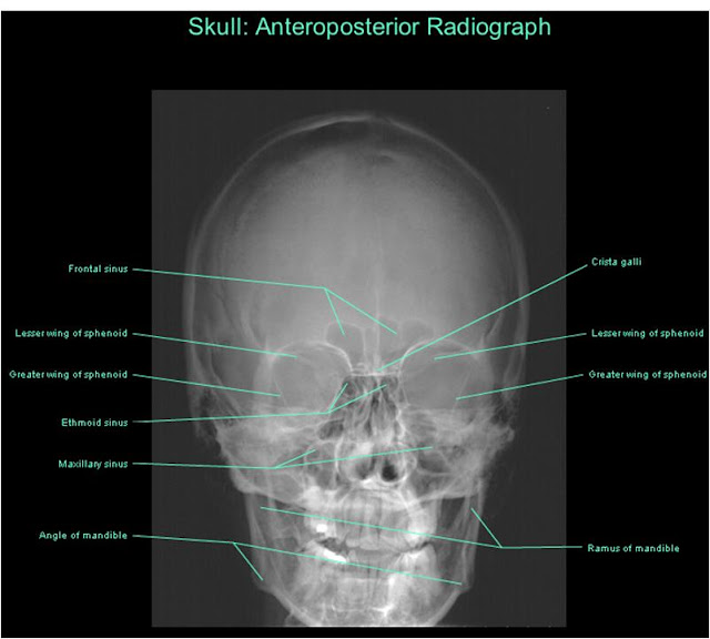 Dentistry lectures for MFDSMJDFNBDEORE Diagrams OfX Ray Skull Views