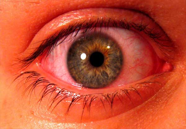 Infeksi Mata Merah (Konjungtivitis)