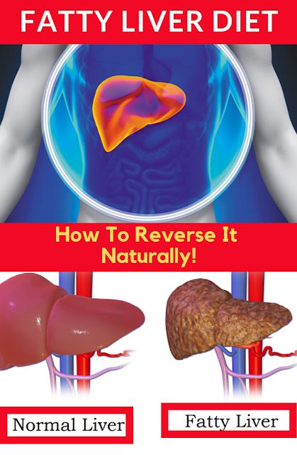 How To Reverse Fatty Liver Naturally