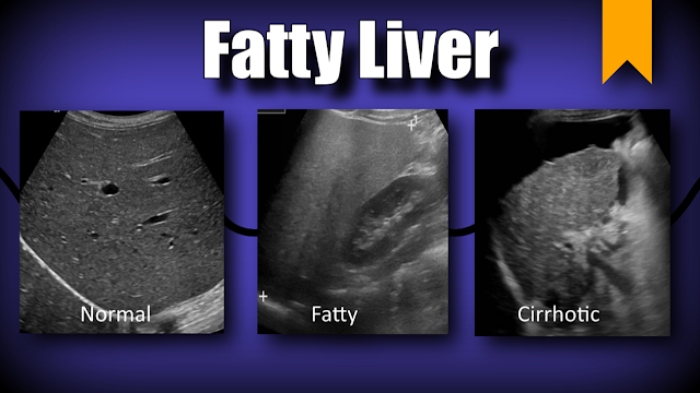 Hepatic Steatosis (Fatty Liver)