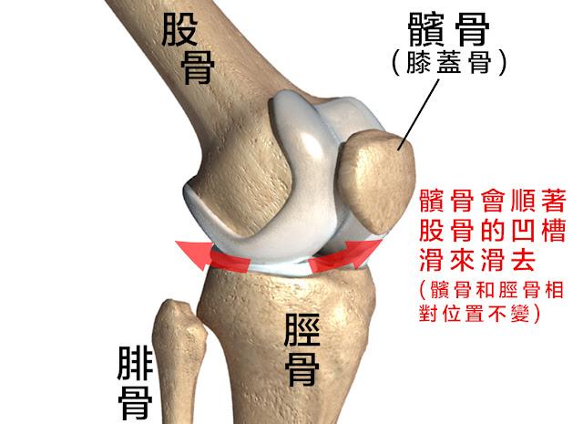 髕股痛 跑者膝 髕骨股骨疼痛症候群
