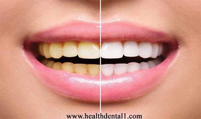 طرق تبييض الأسنان واسباب تصبغها