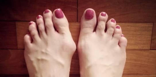 Benjolan di kaki ganglion tumor jinak