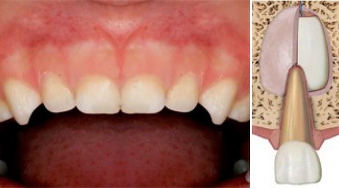 CONCUSIÓN: Protocolos de traumatología en dentición primaria – Actualización 2020