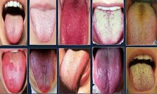 كيفية تشخيص المرض من لون اللسان