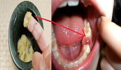 Gigi Yang Berlubang Kini Tak Perlu Ke Dokter Gigi, Sakit Gigi Ternyata Bisa Disembuhkan Dengan Bahan Bumbu Dapur ini. Begini Caranya!!