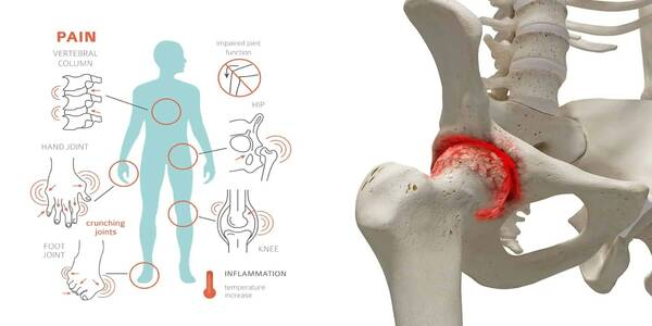 10 Home Remedies for Joint Pain and Arthritis