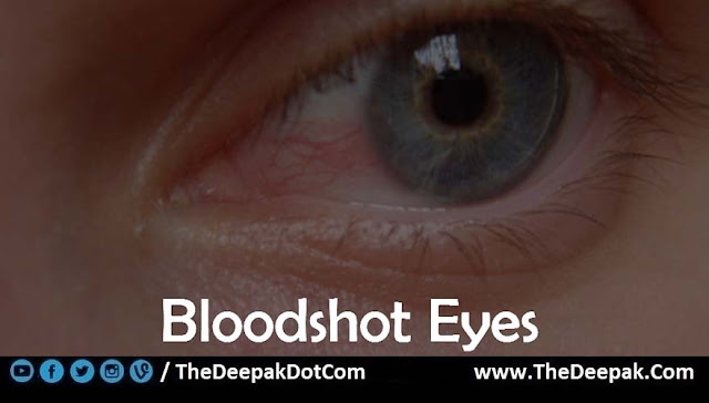 10 Bloodshot Eyes - Signs You are Not Drinking Enough Water
