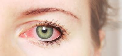 Mata merah disebabkan lantaran adanya peradangan yang terjadi di belahan selaput mata yang me Berbagai Penyebab Mata Merah