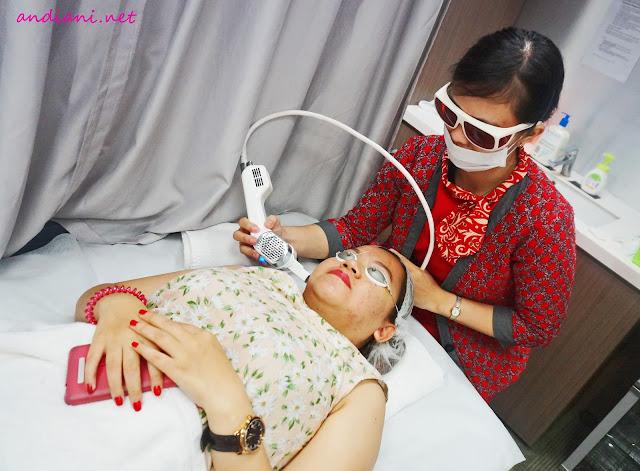 testimoni-JPP-Laser-Clinic