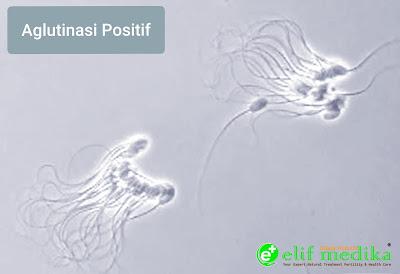 Sperma aglutinasi positif