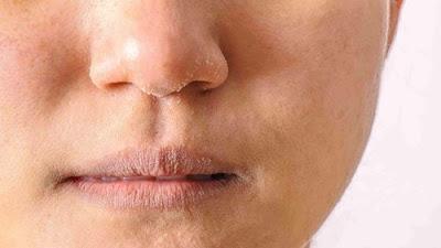 Mengatasi kulit kering dan bibir pecah